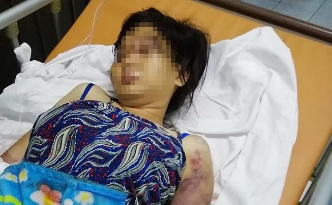 Bà bầu bị tra tấn sinh non, thai nhi tử vong hé lộ nguyên nhân bị nhóm 3 người ra tay