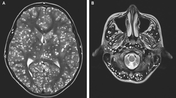 Thanh niên 18 tuổi chết vì ấu trùng sán lợn 'làm tổ' trong não - Ảnh 1.