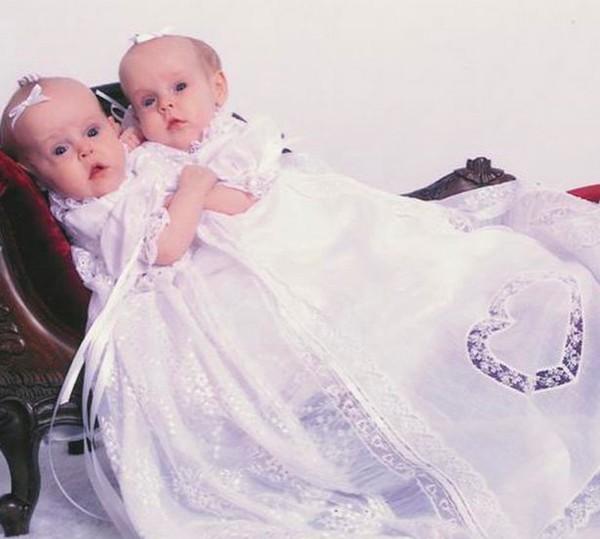 Cuộc sống mỗi người chỉ có một chân của cặp song sinh dính liền phẫu thuật tách đôi khi mới 4 tuổi - Ảnh 1.