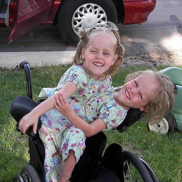 Cuộc sống mỗi người chỉ có một chân của cặp song sinh dính liền phẫu thuật tách đôi khi mới 4 tuổi - Ảnh 2.