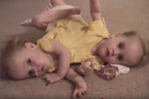 Cuộc sống mỗi người chỉ có một chân của cặp song sinh dính liền phẫu thuật tách đôi khi mới 4 tuổi - Ảnh 3.