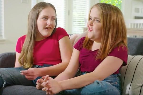 Cuộc sống mỗi người chỉ có một chân của cặp song sinh dính liền phẫu thuật tách đôi khi mới 4 tuổi - Ảnh 6.