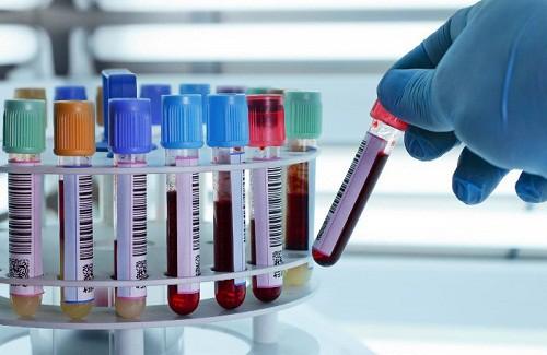 Chuyên gia ung thư: Thử máu có phát hiện sớm ung thư dạ dày ? - Ảnh 2.