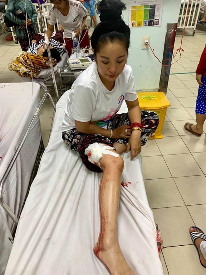 Danh hài Thúy Nga bị tai nạn, máu chảy đầm đìa phải cấp cứu - Ảnh 2.