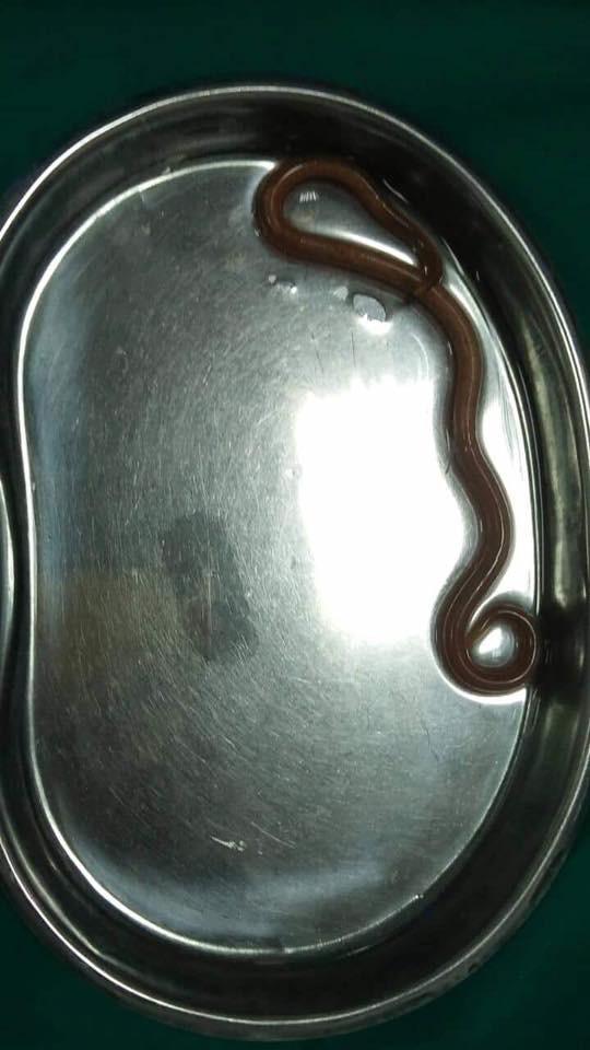 Rợn tóc gáy: Sinh vật dài 15cm lạc vào dạ dày bệnh nhân do thói quen ăn uống này - Ảnh 1.