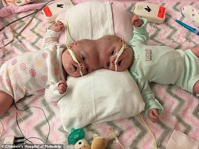 Bất ngờ với cuộc sống hiện tại của cặp song sinh dính liền đầu sau ca phẫu thuật tách rời cách đây 2 năm - Ảnh 1.