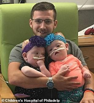 Bất ngờ với cuộc sống hiện tại của cặp song sinh dính liền đầu sau ca phẫu thuật tách rời cách đây 2 năm - Ảnh 6.