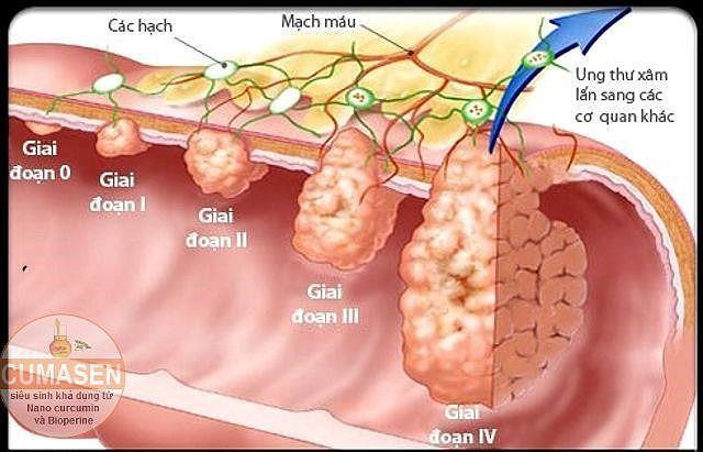 Các giai đoạn của ung thư đại tràng - Ảnh 1.