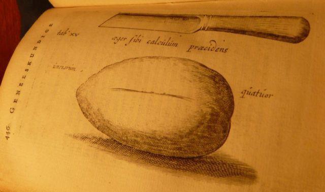 Tranh thủ lúc vợ đi chợ, người thợ rèn Hà Lan ở nhà tự phẫu thuật lấy sỏi bàng quang ra ngoài - Ảnh 3.