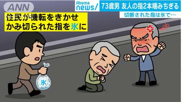 Nhật Bản: Cụ ông 73 tuổi cắn đứt ngón tay bạn nhậu trong lúc say xỉn - Ảnh 2.