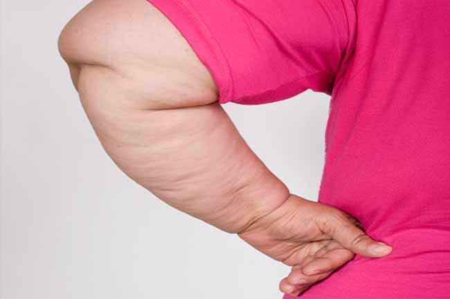 10 dấu hiệu của bệnh béo phì bạn nên biết - Ảnh 7.