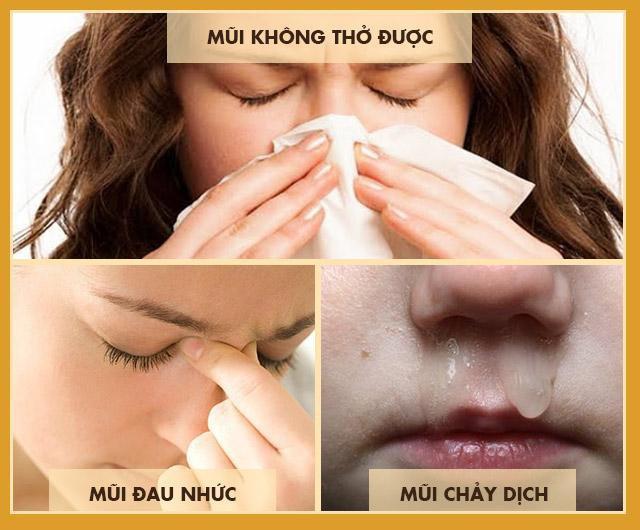 Bệnh viêm xoang mũi: Triệu chứng, cách chữa hiệu quả không kháng sinh - Ảnh 1.