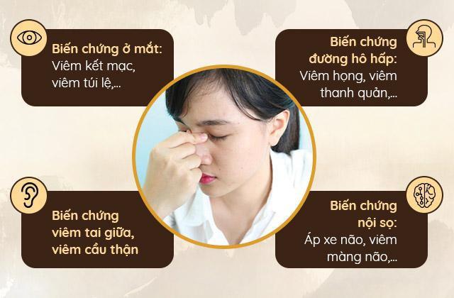 Bệnh viêm xoang mũi: Triệu chứng, cách chữa hiệu quả không kháng sinh - Ảnh 2.