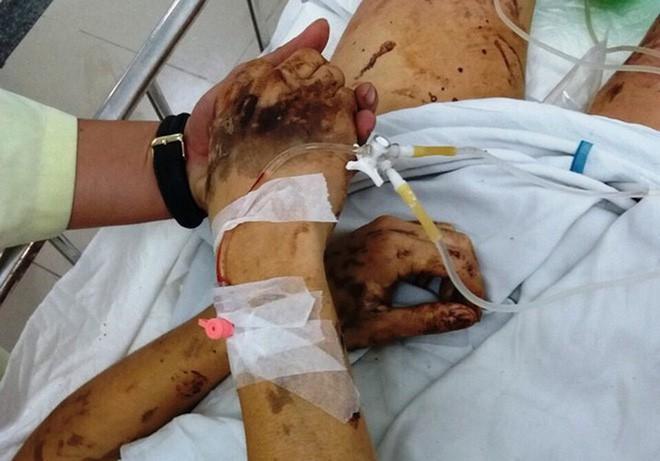 Vụ nam Việt kiều bị tạt axit, cắt gân chân: Đã nhận dạng hung thủ nhưng chưa nhận được tin gì - Ảnh 1.