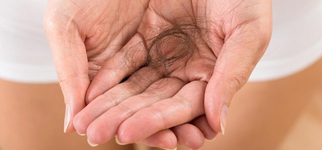 Rụng tóc nhiều có phải tình trạng đáng lo và nguyên nhân do đâu? - Ảnh 1.