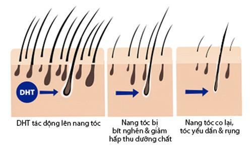 Rụng tóc nhiều có phải tình trạng đáng lo và nguyên nhân do đâu? - Ảnh 4.