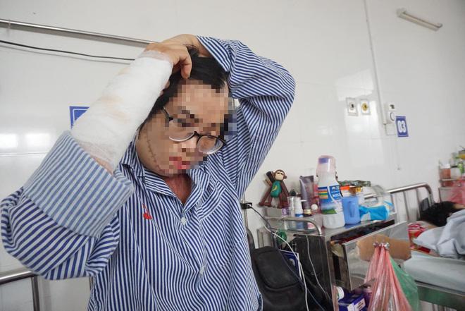 1 năm sau khi bị chồng cũ tạt axit, cô giáo Hà Nội xinh đẹp kể về 5 ngày chết lâm sàng, 21 lần ghép da - Ảnh 1.