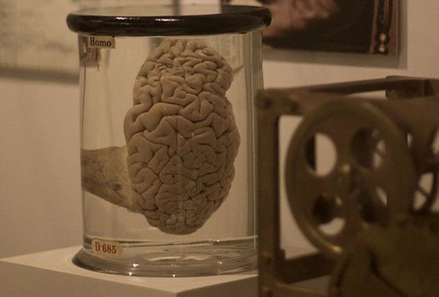 Câu chuyện về những thứ kỳ quái nhất từng được đem ra trưng bày trong bảo tàng: Não, thủ cấp và bộ phận sinh dục con người - Ảnh 3.