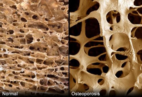 Loãng xương: Thầm lặng, nguy hiểm, ở Việt Nam chỉ 1-5% bệnh nhân gãy xương được điều trị! - Ảnh 1.