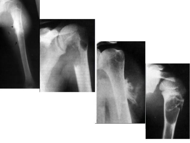 GS Nguyễn Văn Tuấn (từ Úc): Loãng xương và ví dụ về nhà du hành vũ trụ nằm cáng để khiêng - Ảnh 4.