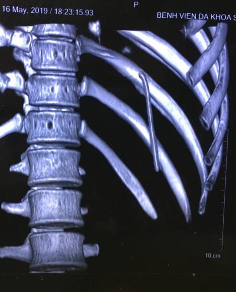 Chiếc đinh 7cm lạc trôi từ vai xuống khoang màng phổi thanh niên 18 tuổi - Ảnh 1.
