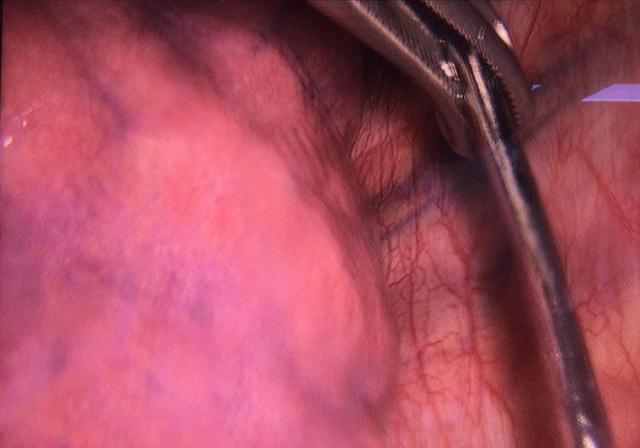 Chiếc đinh 7cm lạc trôi từ vai xuống khoang màng phổi thanh niên 18 tuổi - Ảnh 2.