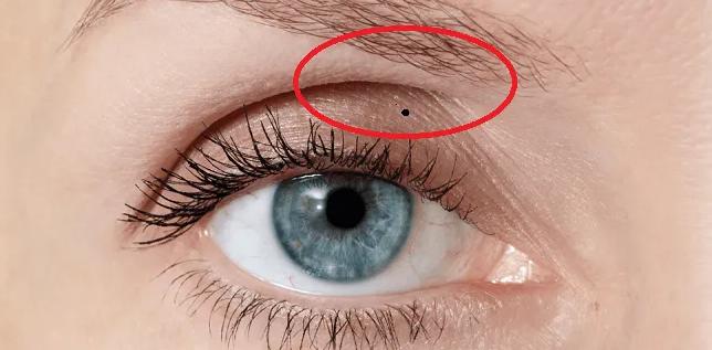 Giải mã ý nghĩa của các vị trí nốt ruồi trên khuôn mặt - Ảnh 5.