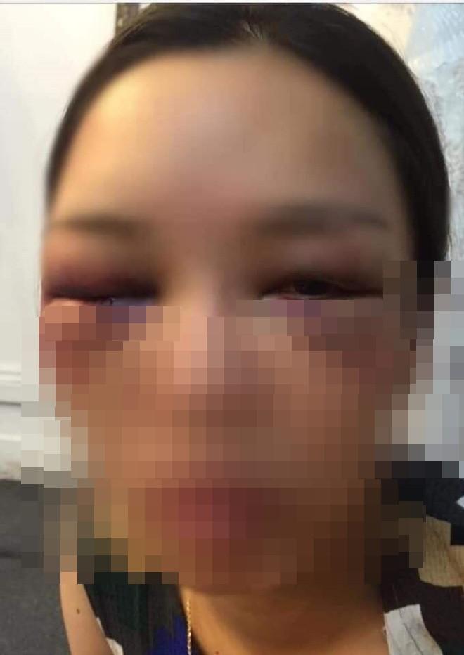 Xôn xao thông tin cô dâu bị đánh bầm mắt vì từ chối chồng hôn trong đám cưới - Ảnh 2.