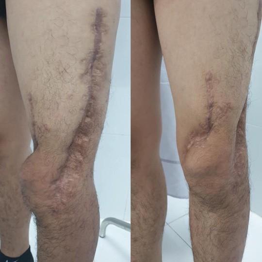 Nam sinh viên được phẫu thuật 6 lần cứu chân suýt phải cắt cụt - Ảnh 2.