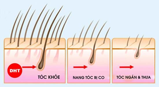 Những sai lầm khi điều trị rụng tóc và lời khuyên của chuyên gia da liễu giúp khắc phục toàn diện, lâu dài - Ảnh 2.