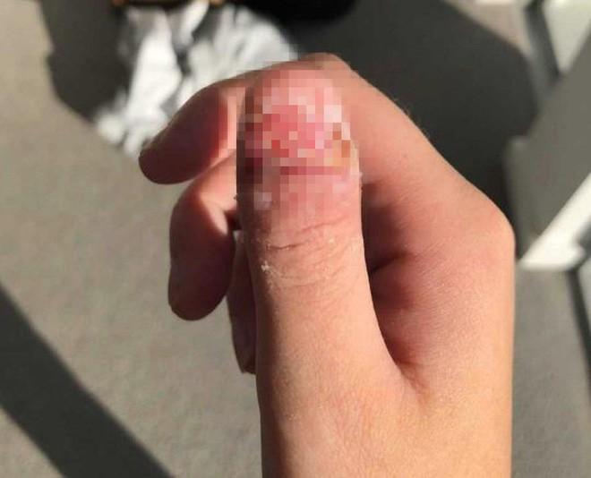 Tâm sự của cô gái bị ung thư, phải cắt bỏ ngón tay cái vì thói quen xấu mà rất nhiều người mắc phải - Ảnh 3.