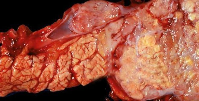 Căn bệnh ung thư cực kỳ nguy hiểm, tỷ lệ sống chỉ được 5%: Dấu hiệu nào nhận biết bệnh? - Ảnh 1.