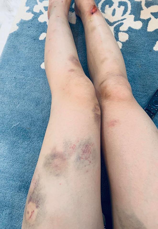 Quỳnh búp bê Phương Oanh gây xôn xao khi khoe đôi chân đầy vết thương - Ảnh 4.