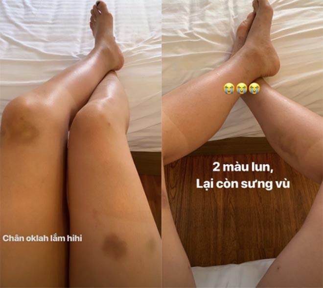 Hoa hậu Kỳ Duyên để lộ đôi chân bầm tím, nhiều vết thương  - Ảnh 1.