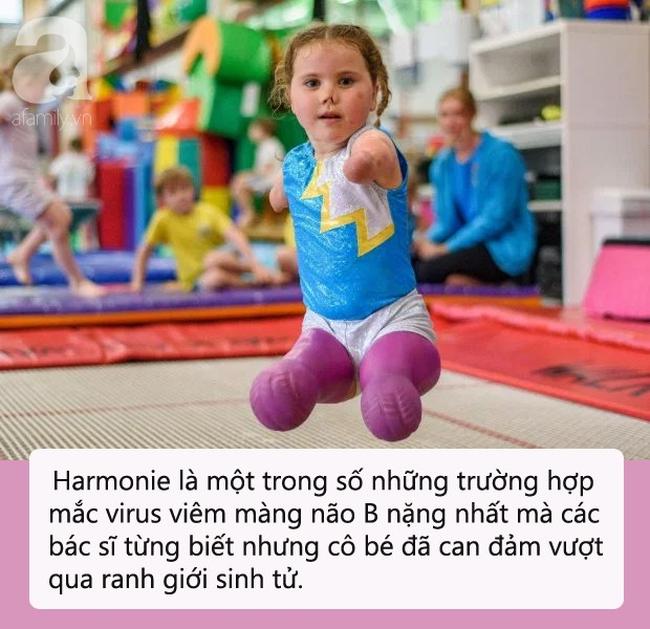 Bé gái 5 tuổi mất cả tứ chi vì viêm màng não tự tin tập môn thể thao mà ngay cả người đủ tay chân cũng e ngại - Ảnh 1.