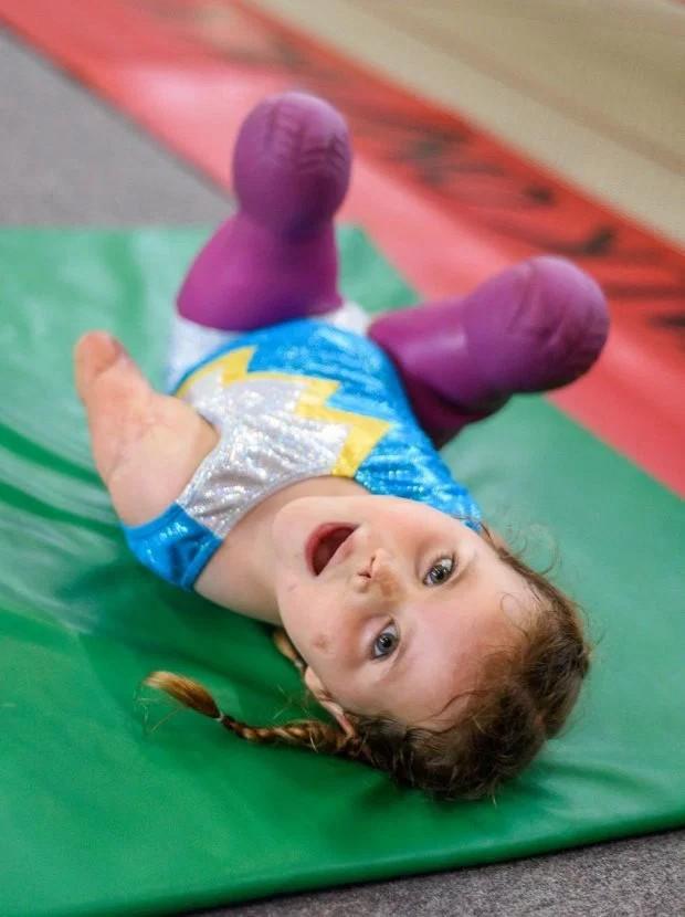 Bé gái 5 tuổi mất cả tứ chi vì viêm màng não tự tin tập môn thể thao mà ngay cả người đủ tay chân cũng e ngại - Ảnh 3.