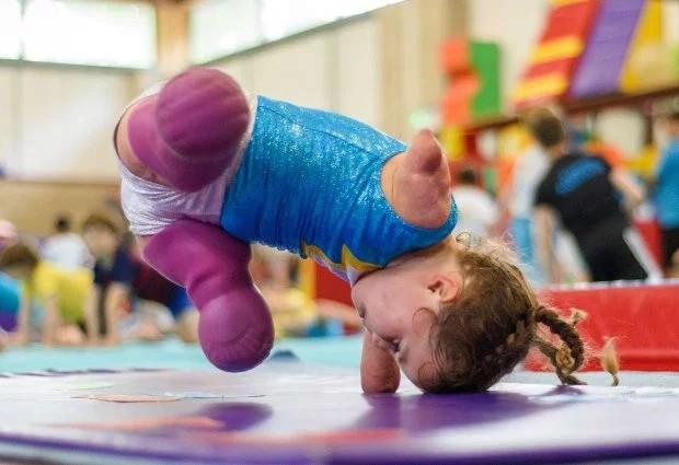 Bé gái 5 tuổi mất cả tứ chi vì viêm màng não tự tin tập môn thể thao mà ngay cả người đủ tay chân cũng e ngại - Ảnh 4.