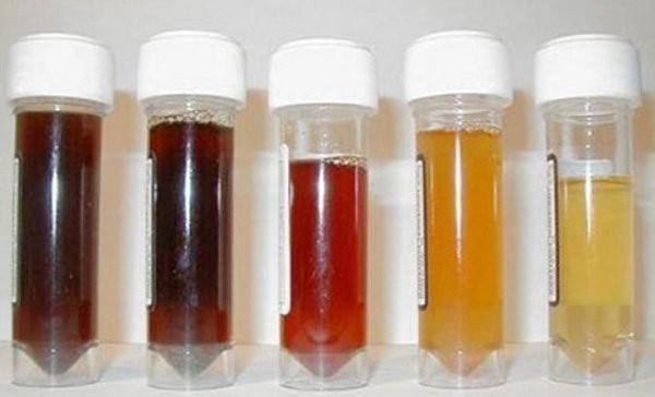 4 dấu hiệu lạ xuất hiện khi đi vệ sinh: Hãy nhanh chóng đi kiểm tra chức năng gan sớm - Ảnh 1.