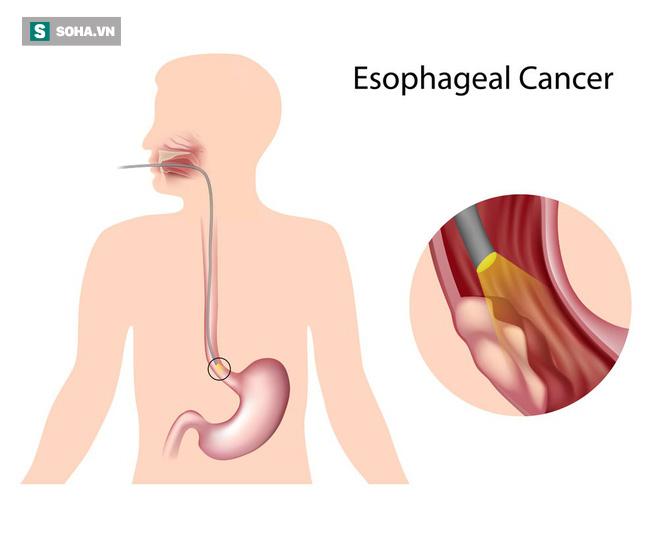 Bác sĩ khuyến cáo 3 yếu tố phổ biến có thể gây ung thư thực quản, ai cũng nên tránh - Ảnh 1.