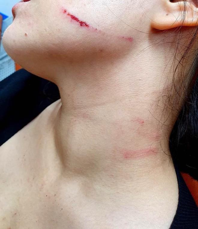 Hỏi xin giấy vệ sinh, cô gái ngoại quốc sống tại Hàn bị đánh dữ dội và phải chịu sự phân biệt đối xử của những người xung quanh - Ảnh 4.