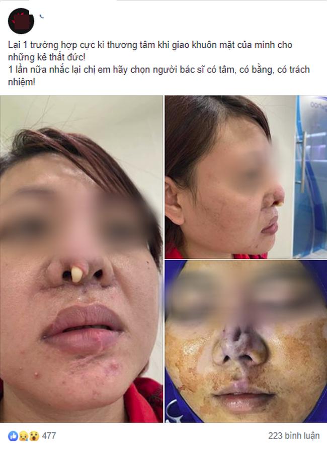 Góc kinh dị: Bà mẹ trẻ đi nâng mũi, nhưng bị lòi cả sụn ra ngoài khiến hội chị em hoang mang sợ hãi - ảnh 1