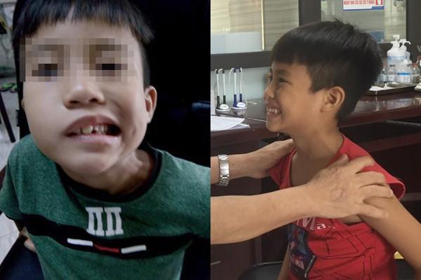 Bé trai 8 tuổi liệt mặt, méo miệng do thói quen dùng điều hòa sai cách - Ảnh 1.