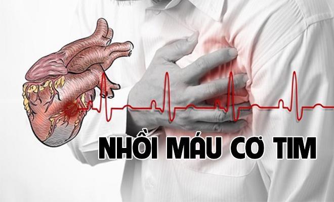 GS tim mạch tiết lộ: 2 thời điểm quỷ ám bùng phát cơn đau tim, ghi nhớ để tránh tử vong - Ảnh 1.