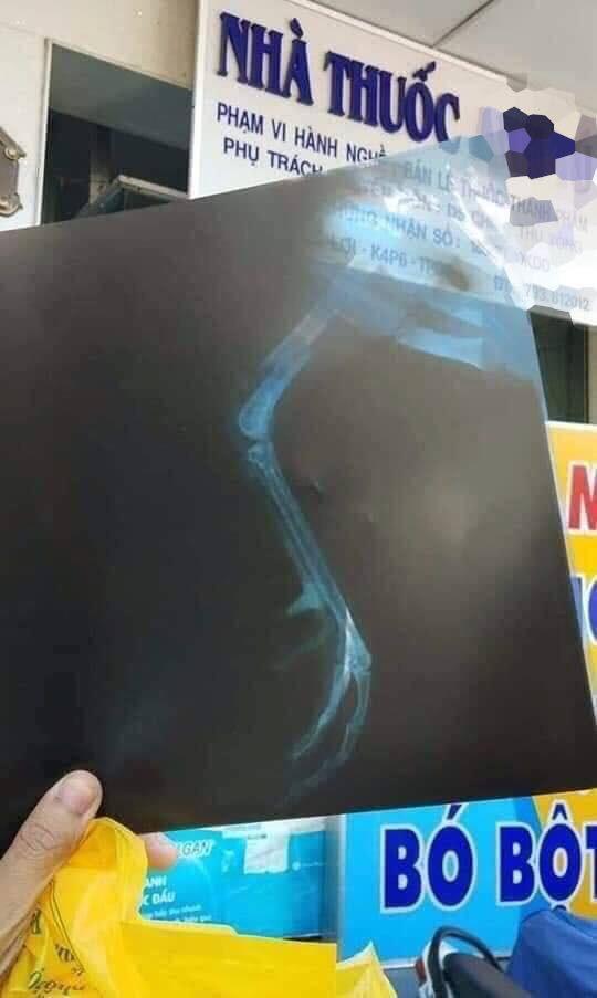 Vợ tố chồng chăm gà cưng hơn mình, gãy chân còn mang đi chụp X-quang, bó bột - Ảnh 1.