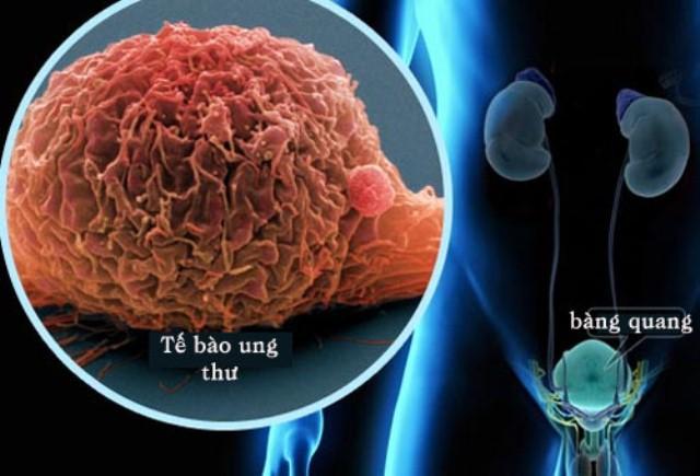 Cảnh báo căn bệnh ung thư rất hay gặp trong các ung thư đường tiết niệu - Ảnh 1.