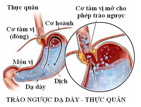 Bài thuốc trị bệnh trào ngược dạ dày thực quản - Ảnh 1.
