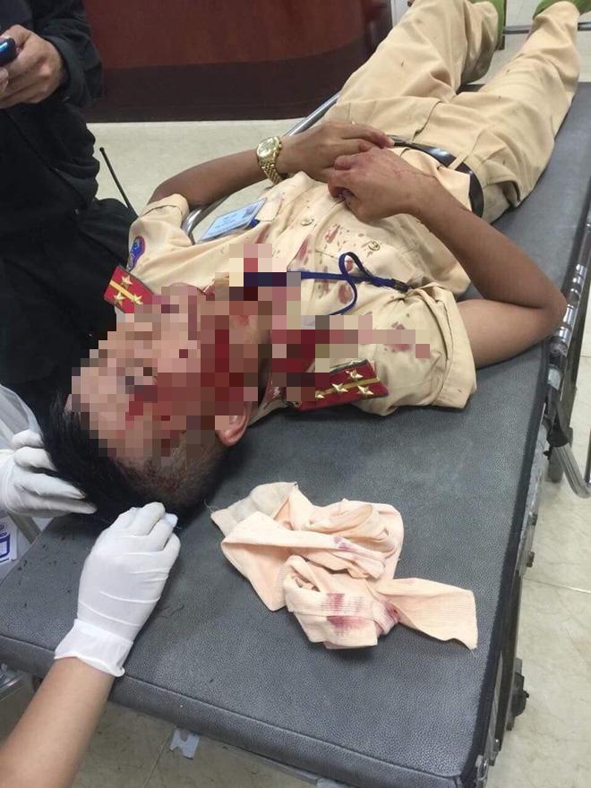 Kẻ cầm đá tấn công bất ngờ khiến CSGT bất tỉnh đối diện tội danh nào? - Ảnh 2.