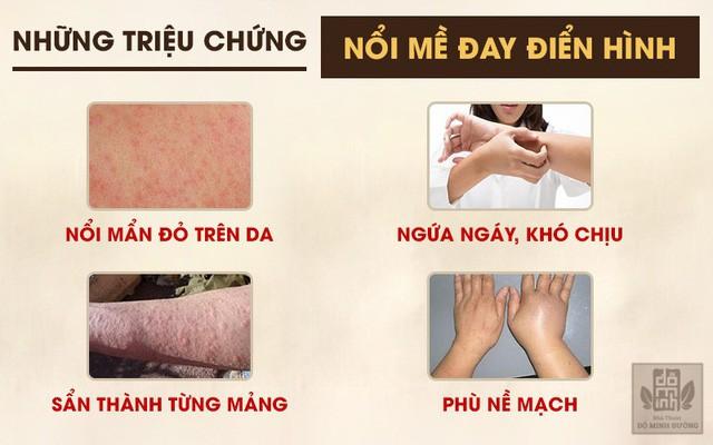Nổi mề đay mẩn ngứa: Triệu chứng và cách chữa trị hết dị ứng, nổi mẩn đỏ - Ảnh 3.