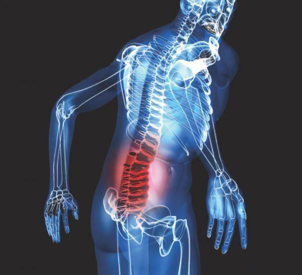 Bác sĩ khẳng định đau lưng do căng thẳng, bệnh nhân bàng hoàng vì sự thật sốc hơn nhiều - Ảnh 4.