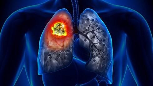 Hút thuốc từ năm 15 tuổi, đã bỏ thuốc 20 năm quý ông 57 tuổi ung thư phổi - Ảnh 1.